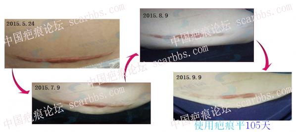 """过去3年了,剖腹产疤痕还能""""掉""""吗?10-疤痕体质图片_疤痕疙瘩图片-中国疤痕论坛"""