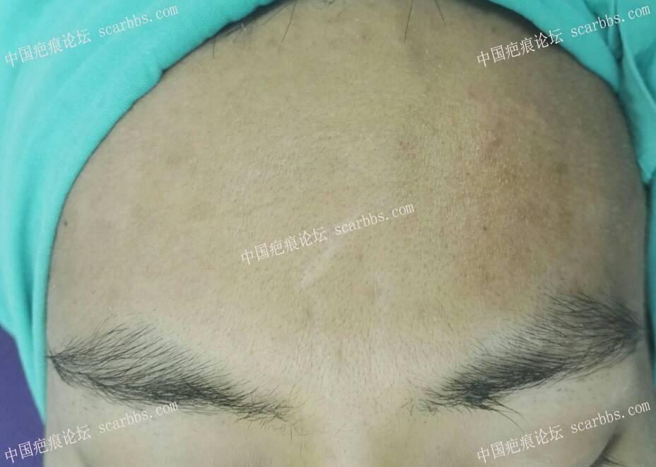 面部疤痕切缝效果展示