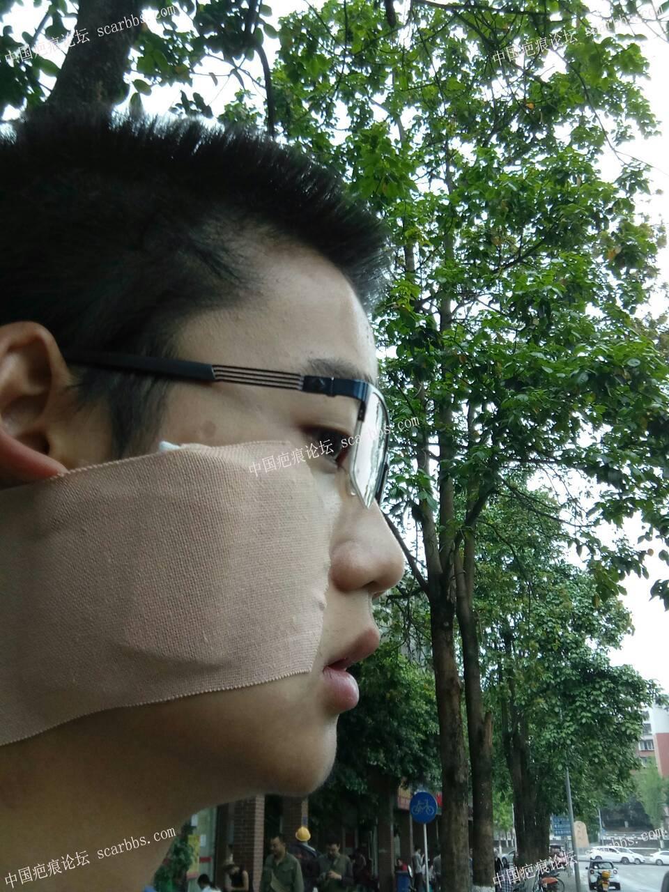 点痣留下增生疤痕,4月12日杨东运教授手术