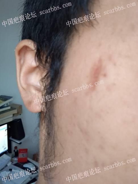 脸部凹陷色素疤痕,用什么方法治疗好啊?84-疤痕体质图片_疤痕疙瘩图片-中国疤痕论坛