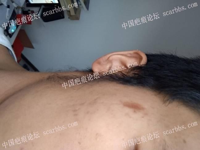 脸部凹陷色素疤痕,用什么方法治疗好啊?37-疤痕体质图片_疤痕疙瘩图片-中国疤痕论坛