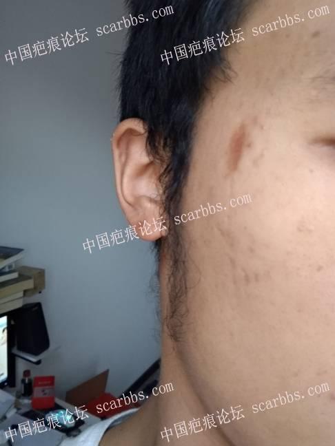 脸部凹陷色素疤痕,用什么方法治疗好啊?41-疤痕体质图片_疤痕疙瘩图片-中国疤痕论坛