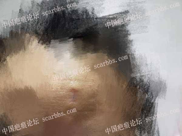 额头手术切痣后留下猫耳朵,怎么修复?66-疤痕体质图片_疤痕疙瘩图片-中国疤痕论坛