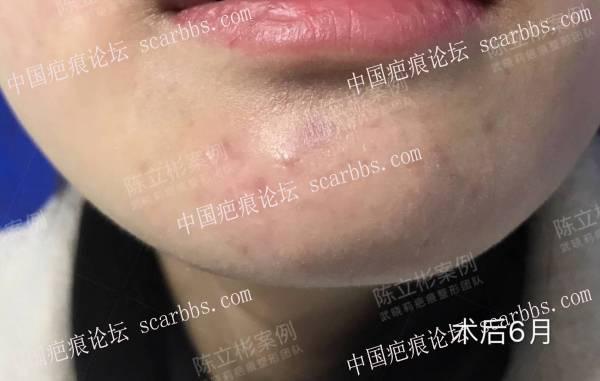 面部陈旧性疤痕术后半年复诊记录56-疤痕体质图片_疤痕疙瘩图片-中国疤痕论坛