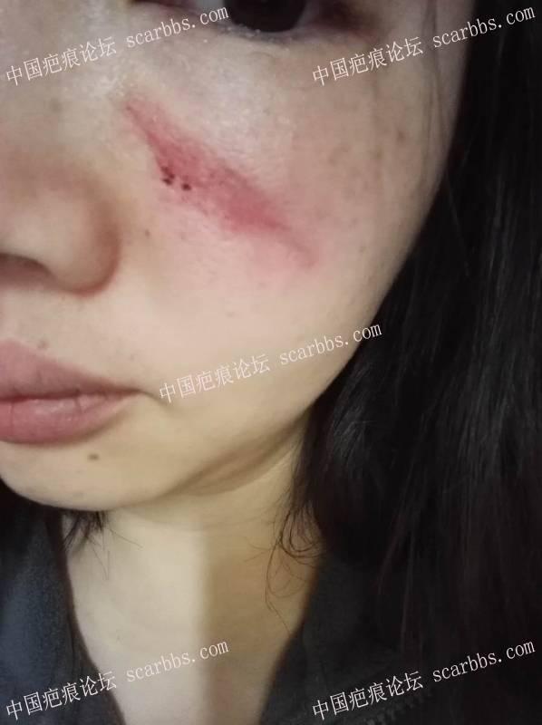 18.07.19疤痕切除手术,面部线状撞伤缝针疤痕1-疤痕体质图片_疤痕疙瘩图片-中国疤痕论坛