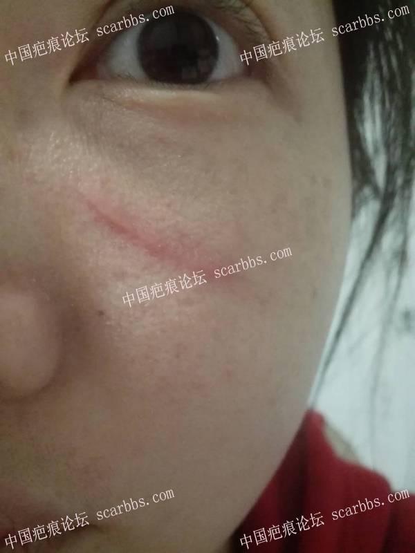 18.07.19疤痕切除手术,面部线状撞伤缝针疤痕92-疤痕体质图片_疤痕疙瘩图片-中国疤痕论坛
