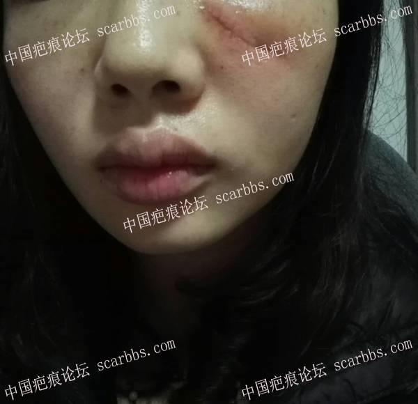 18.07.19疤痕切除手术,面部线状撞伤缝针疤痕96-疤痕体质图片_疤痕疙瘩图片-中国疤痕论坛