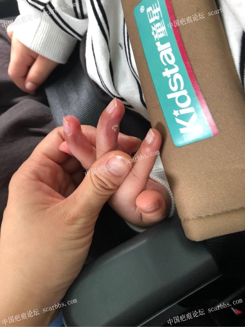 宝贝3岁6个月,手指被跑步机夹伤,现在一个月了该怎么办80-疤痕体质图片_疤痕疙瘩图片-中国疤痕论坛
