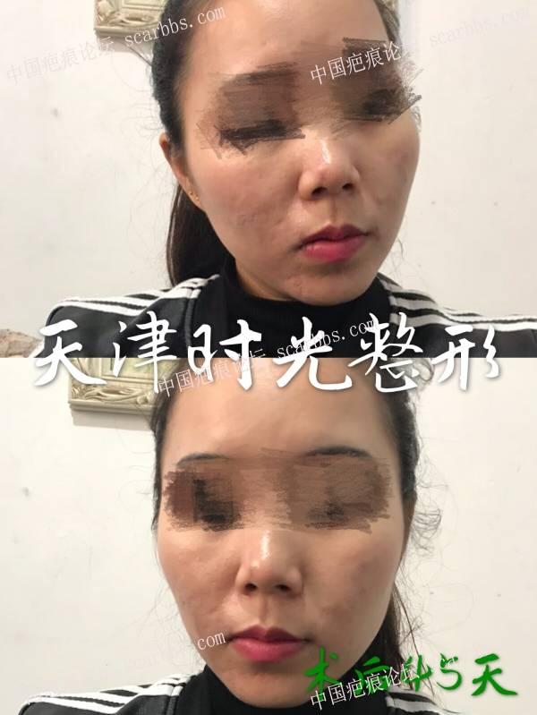 痘坑(疤痕)切缝对比效果图71-疤痕体质图片_疤痕疙瘩图片-中国疤痕论坛