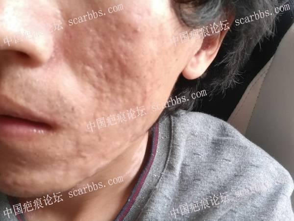 痘坑切除全程直播4月22日起,每天一更5-疤痕体质图片_疤痕疙瘩图片-中国疤痕论坛