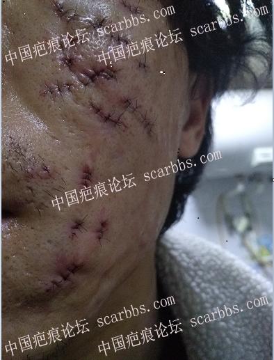 痘坑切除全程直播4月22日起,每天一更47-疤痕体质图片_疤痕疙瘩图片-中国疤痕论坛