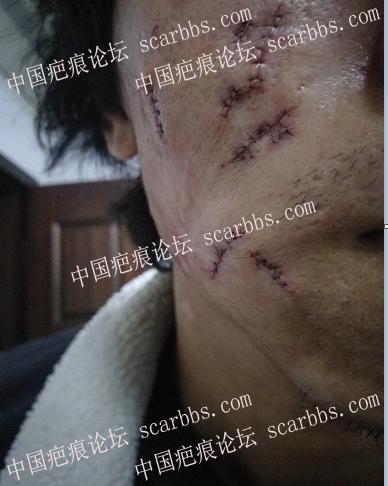 痘坑切除全程直播4月22日起,每天一更25-疤痕体质图片_疤痕疙瘩图片-中国疤痕论坛