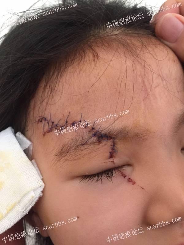 女儿脸部摔伤7个月了,分享护理经验 宝贝摔伤,缝针疤痕,护理之路,