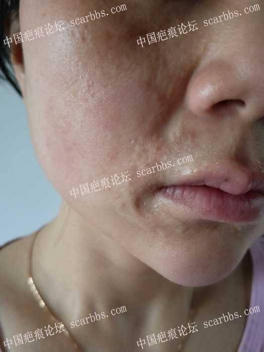 二十五年的陈旧性疤痕。做过五次激光没效果,求助用什么方法可以修复?