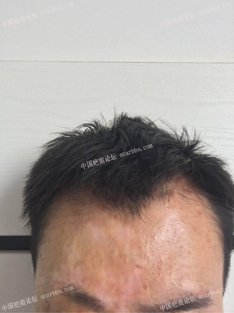 额头的旧疤痕,可以用扩张器手术治疗吗?