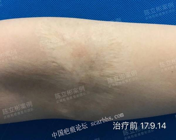 手臂烧伤后陈旧性疤痕 离子束治疗三次后复诊