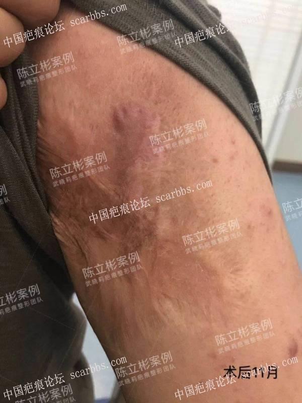 胸部疤痕疙瘩 上臂疤痕疙瘩 术后11个月复诊记录0-疤痕体质图片_疤痕疙瘩图片-中国疤痕论坛