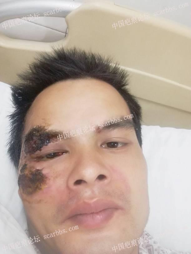 脸部摔伤两个多月了,如何护理?78-疤痕体质图片_疤痕疙瘩图片-中国疤痕论坛