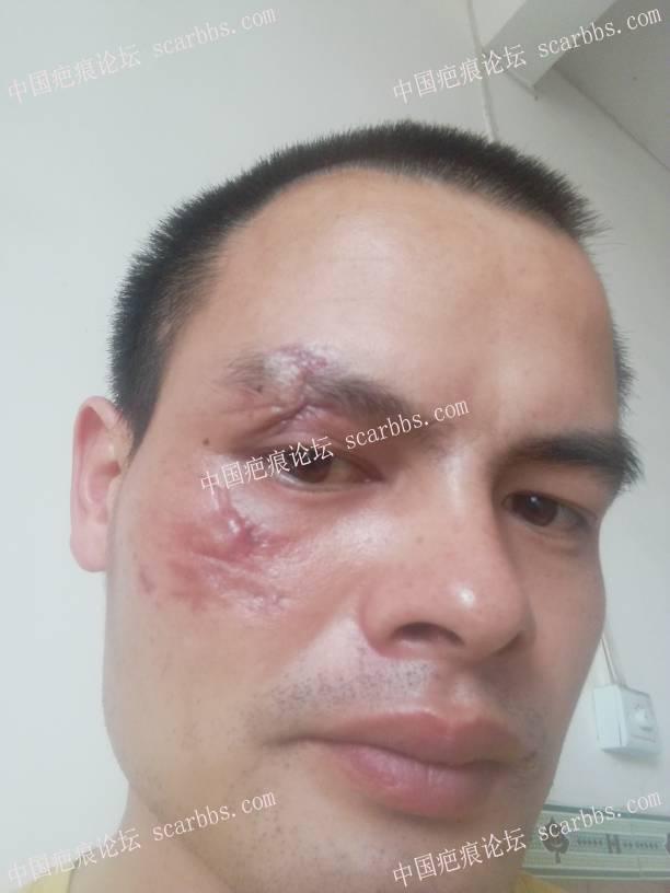 脸部摔伤两个多月了,如何护理?69-疤痕体质图片_疤痕疙瘩图片-中国疤痕论坛