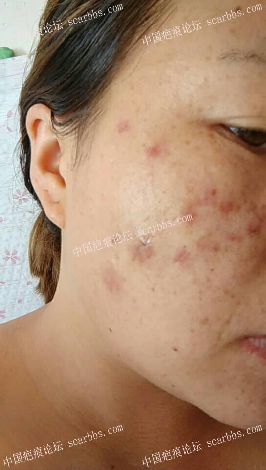 痘坑疤痕切除,拆线27天了100-疤痕体质图片_疤痕疙瘩图片-中国疤痕论坛