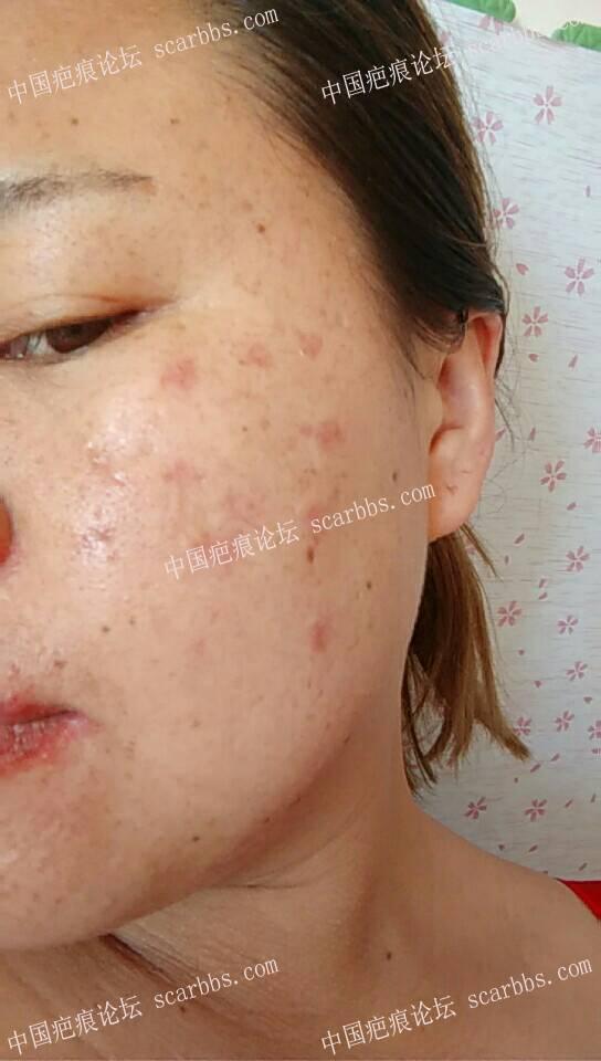 痘坑疤痕切除,拆线27天了89-疤痕体质图片_疤痕疙瘩图片-中国疤痕论坛