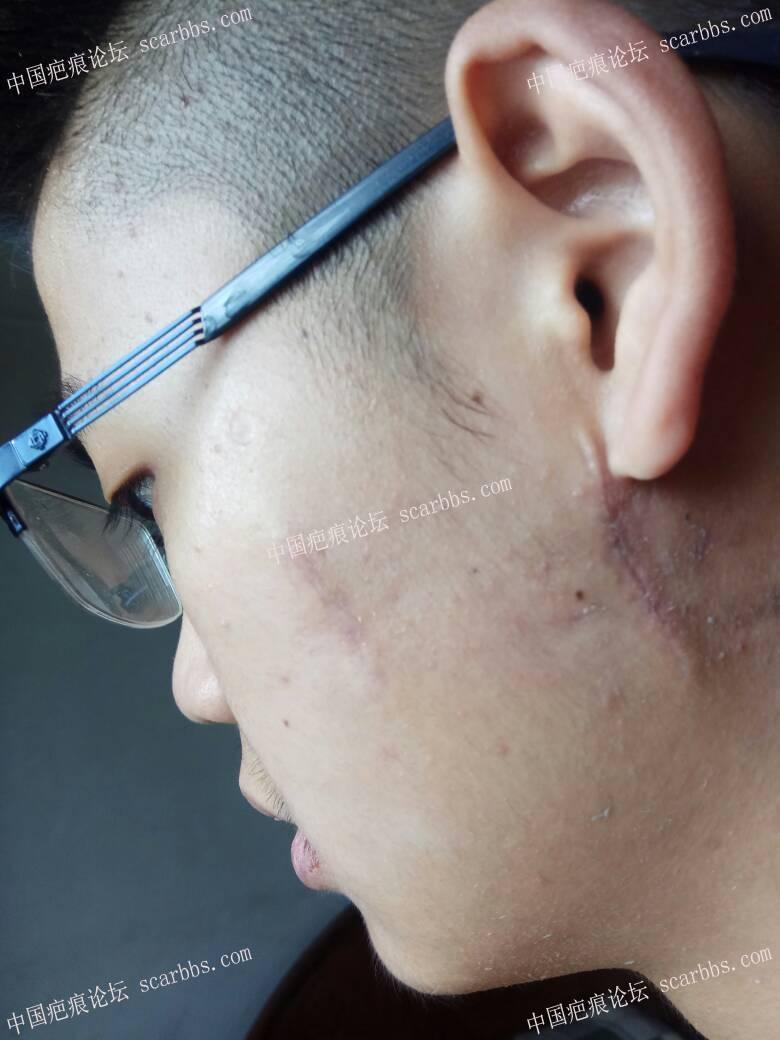 点痣留下增生疤痕,4月12日杨东运教授手术切除