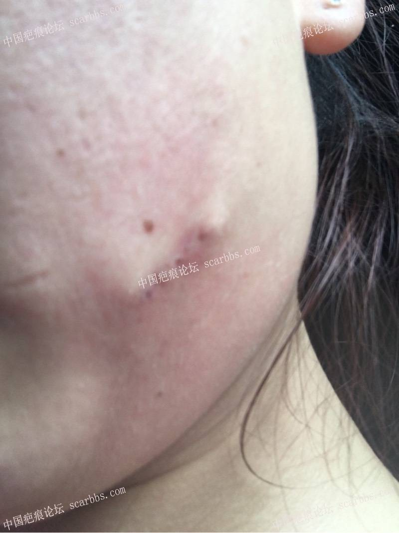 脸部切缝手术一个月了,有猫耳朵。