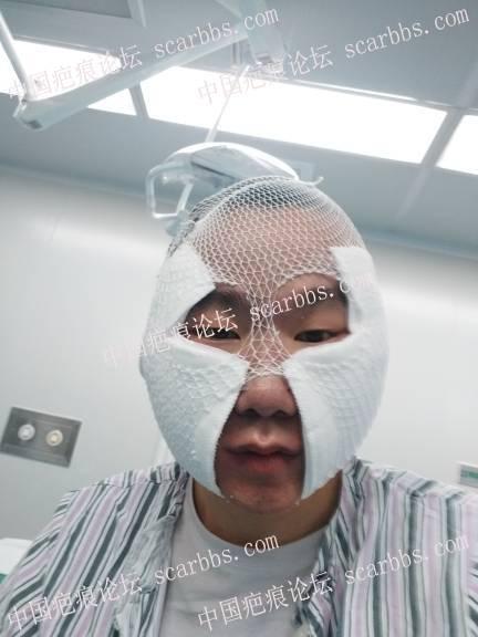 痘坑全脸磨削,三年前做了点阵,三年后在当回小白鼠试下磨削术!82-疤痕体质图片_疤痕疙瘩图片-中国疤痕论坛