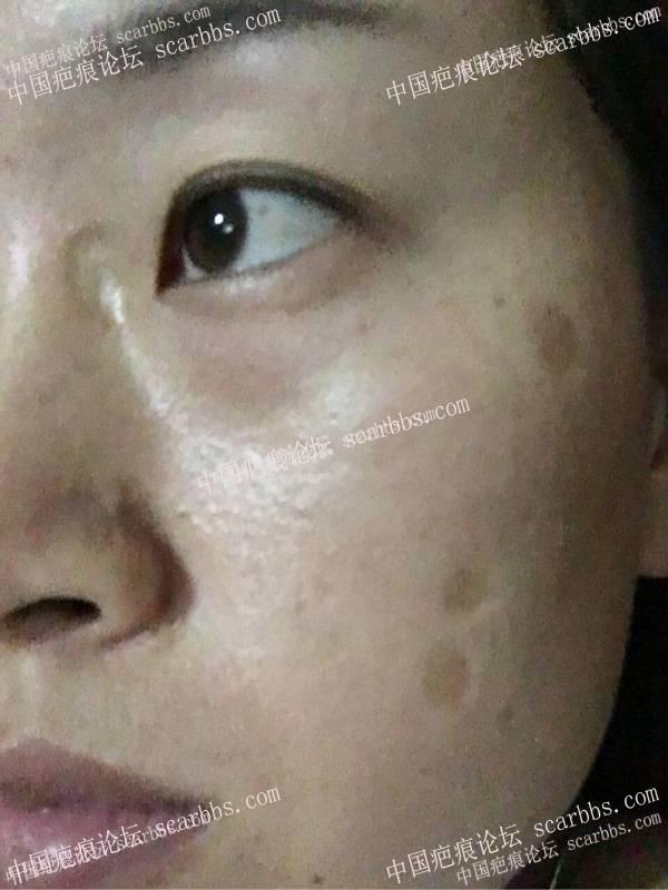 点痣留下的8毫米圆形轻微凹陷色沉疤痕99-疤痕体质图片_疤痕疙瘩图片-中国疤痕论坛