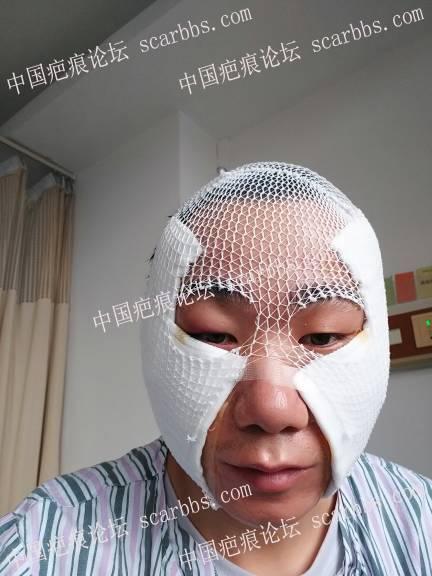 痘坑全脸磨削,三年前做了点阵,三年后在当回小白鼠试下磨削术!72-疤痕体质图片_疤痕疙瘩图片-中国疤痕论坛