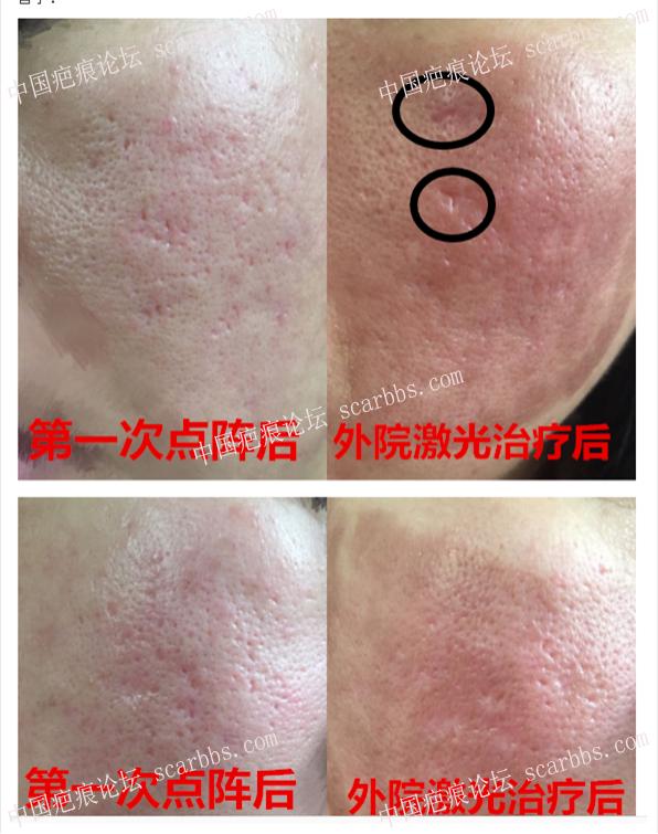 痘坑治疗一年征程实录23-疤痕体质图片_疤痕疙瘩图片-中国疤痕论坛