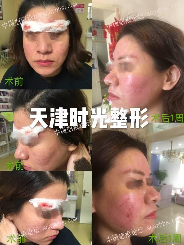 痘坑治疗一年征程实录17-疤痕体质图片_疤痕疙瘩图片-中国疤痕论坛