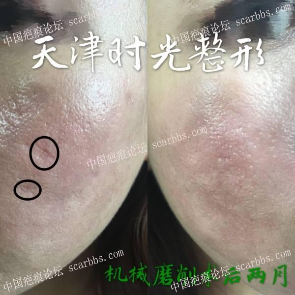 痘坑治疗一年征程实录98-疤痕体质图片_疤痕疙瘩图片-中国疤痕论坛