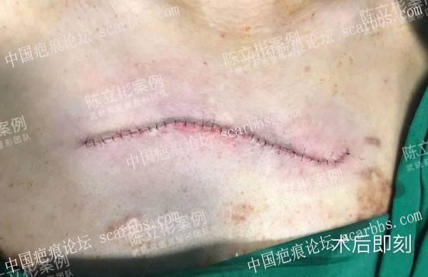 胸部疤痕疙瘩术后5个月复诊记录51-疤痕体质图片_疤痕疙瘩图片-中国疤痕论坛