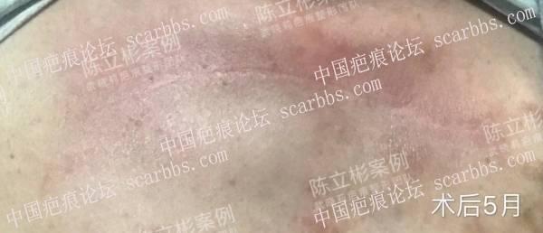 胸部疤痕疙瘩术后5个月复诊记录86-疤痕体质图片_疤痕疙瘩图片-中国疤痕论坛