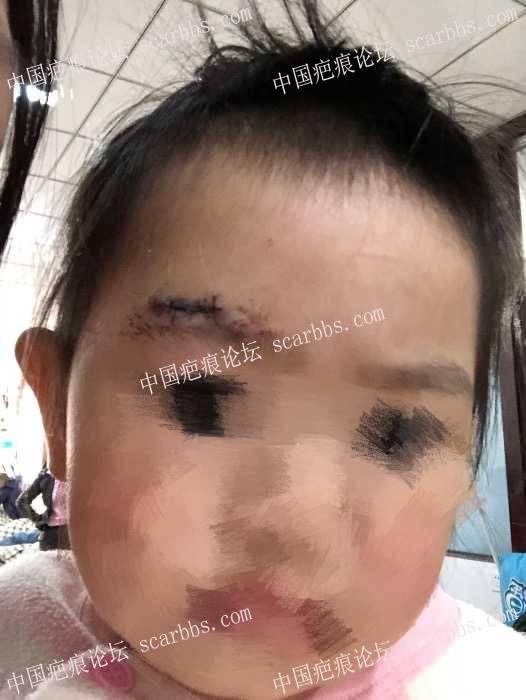 女儿眉毛上方摔伤,该如何护理?25-疤痕体质图片_疤痕疙瘩图片-中国疤痕论坛