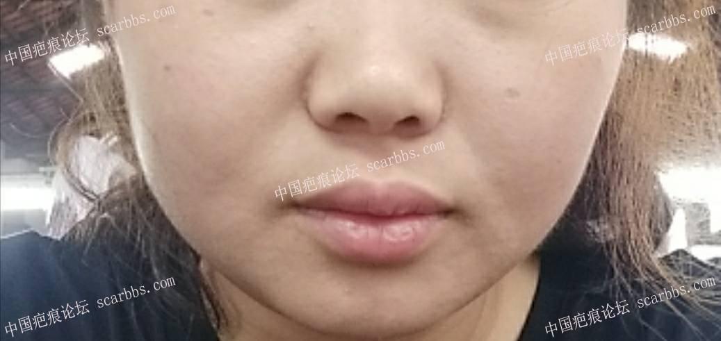 点痣留下的凹陷疤痕,有三个凹坑,有没有什么办法恢复?79-疤痕体质图片_疤痕疙瘩图片-中国疤痕论坛