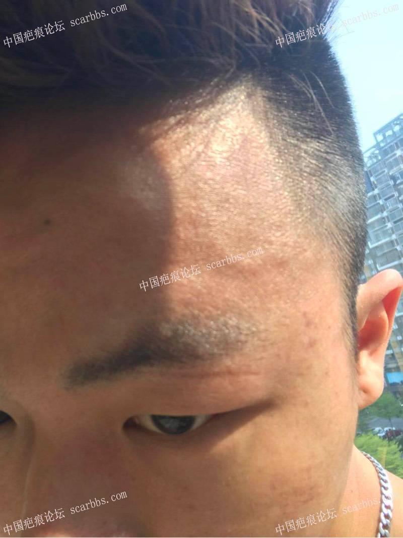 眉部的凹陷疤痕在天津时光切除了64-疤痕体质图片_疤痕疙瘩图片-中国疤痕论坛