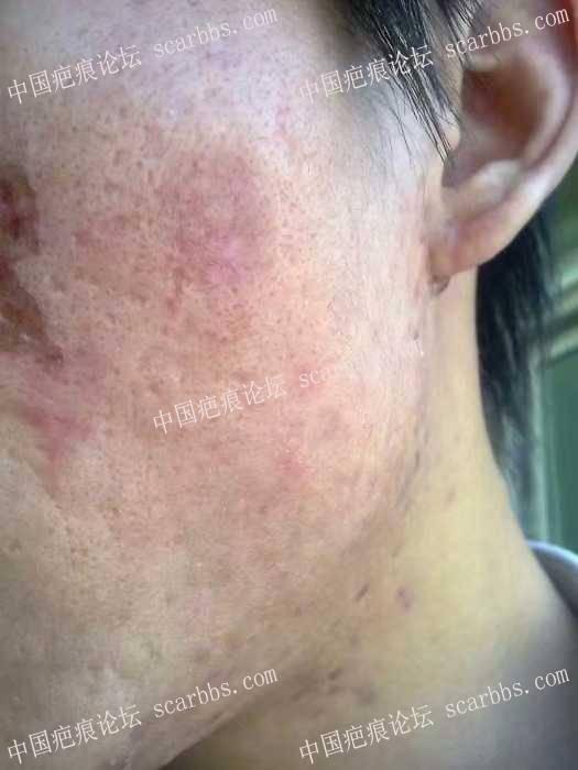 痘坑全脸磨削,三年前做了点阵,三年后在当回小白鼠试下磨削术!48-疤痕体质图片_疤痕疙瘩图片-中国疤痕论坛
