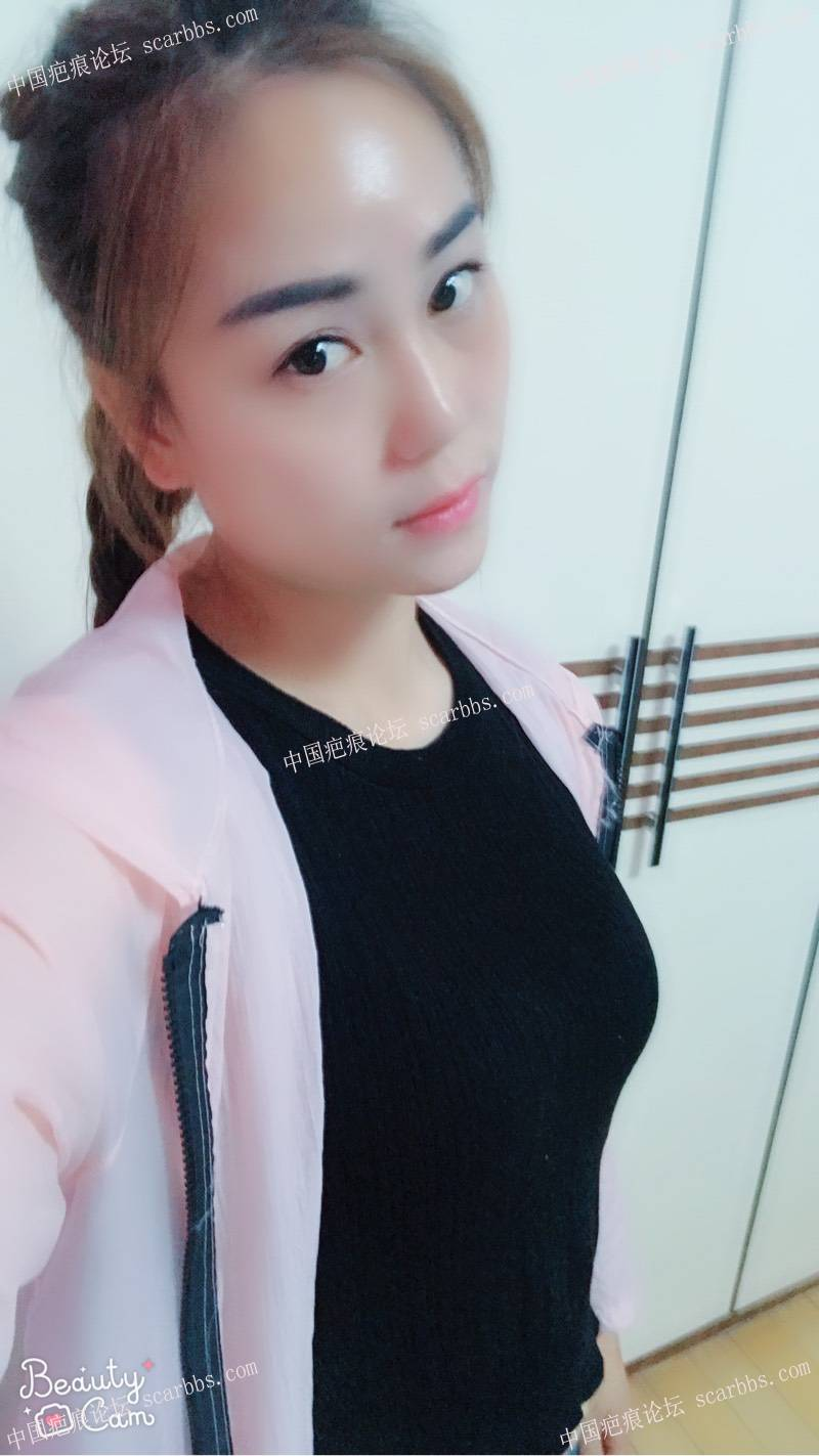 脸部凹陷疤痕切除三个月了,是不是变美很多!2-疤痕体质图片_疤痕疙瘩图片-中国疤痕论坛