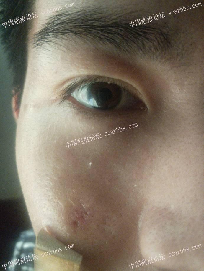 脸部凹陷疤痕切除17天了,肿的严重还有希望消下去吗?14-疤痕体质图片_疤痕疙瘩图片-中国疤痕论坛