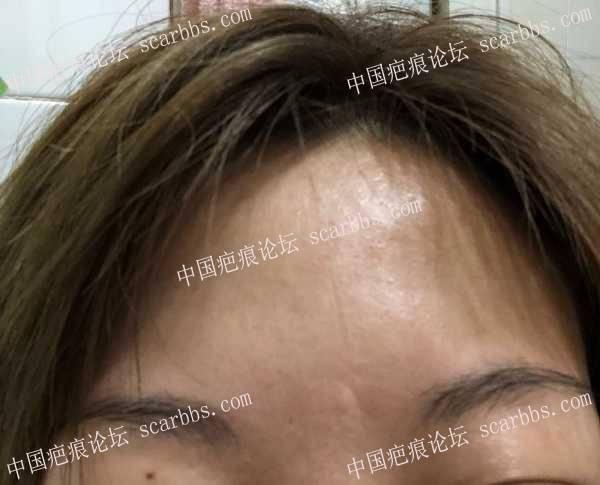 额头28年的凹疤痕,细胞种植有用吗?41-疤痕体质图片_疤痕疙瘩图片-中国疤痕论坛