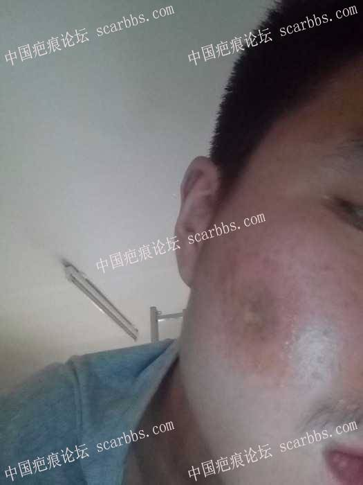 脸部凹陷疤痕,中午空总做的plasma81-疤痕体质图片_疤痕疙瘩图片-中国疤痕论坛