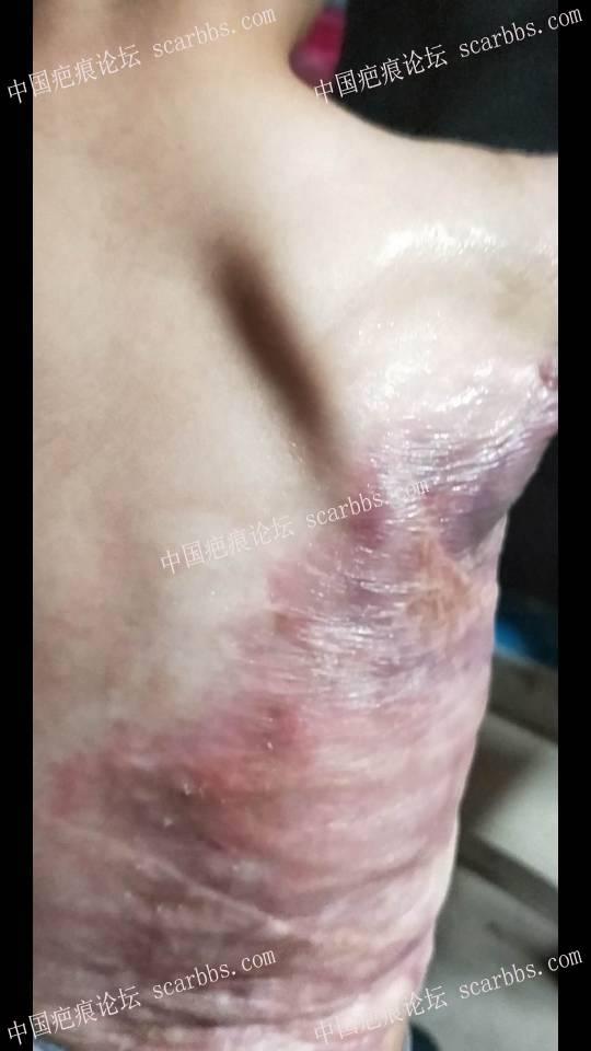 宝宝烫伤一年多了,加压也差不多10个月了,现在这样,请问还需要加压吗?69-疤痕体质图片_疤痕疙瘩图片-中国疤痕论坛