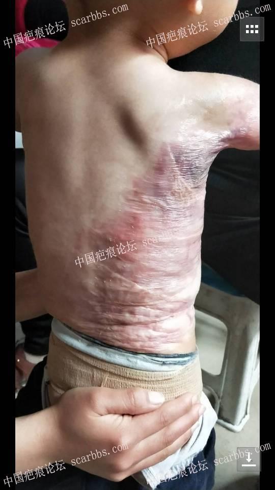 宝宝烫伤一年多了,加压也差不多10个月了,现在这样,请问还需要加压吗?17-疤痕体质图片_疤痕疙瘩图片-中国疤痕论坛