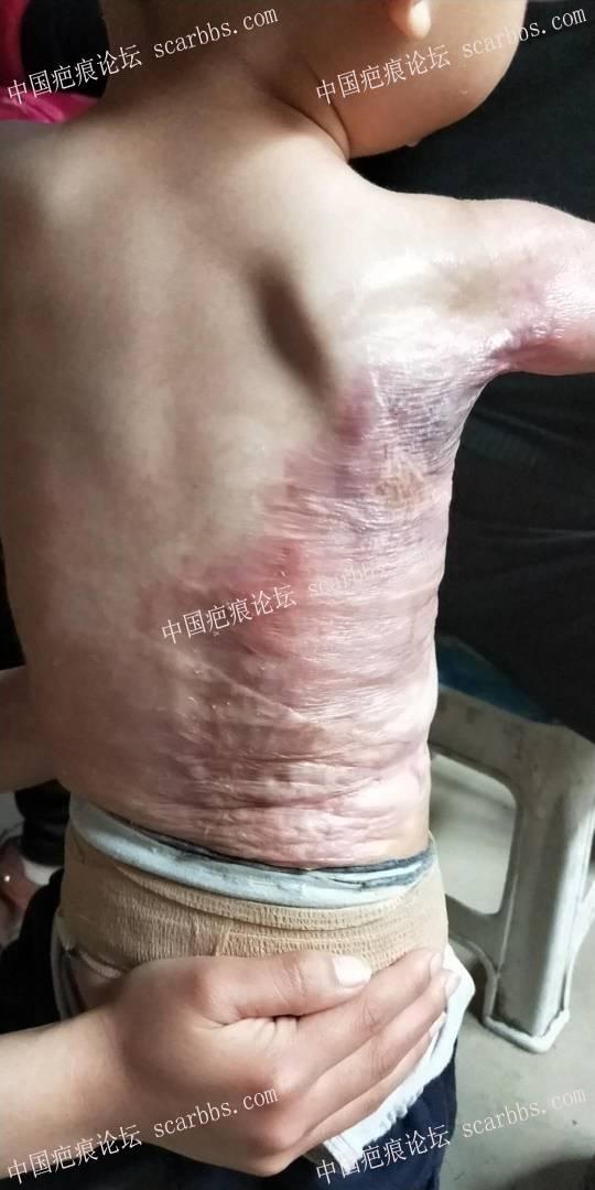 宝宝烫伤一年多了,加压也差不多10个月了,现在这样,请问还需要加压吗?50-疤痕体质图片_疤痕疙瘩图片-中国疤痕论坛