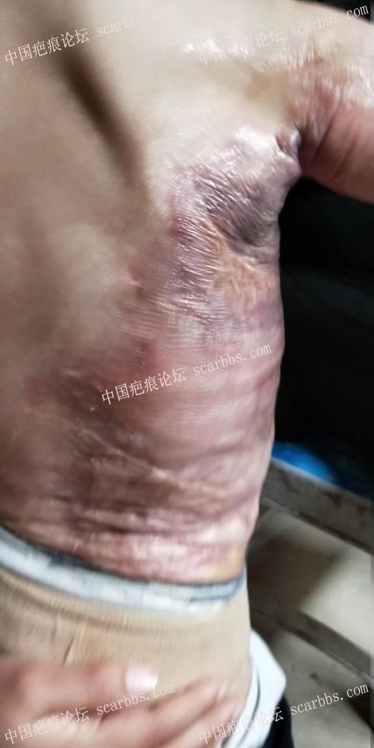 宝宝烫伤一年多了,加压也差不多10个月了,现在这样,请问还需要加压吗?33-疤痕体质图片_疤痕疙瘩图片-中国疤痕论坛