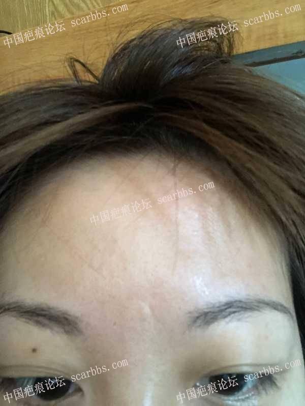 额头28年的凹疤痕,细胞种植有用吗?38-疤痕体质图片_疤痕疙瘩图片-中国疤痕论坛
