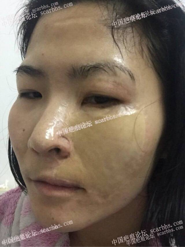 30年了,脸部烫伤,脸部做的值皮,疤痕针脚很明显,鼻翼有缺损33-疤痕体质图片_疤痕疙瘩图片-中国疤痕论坛