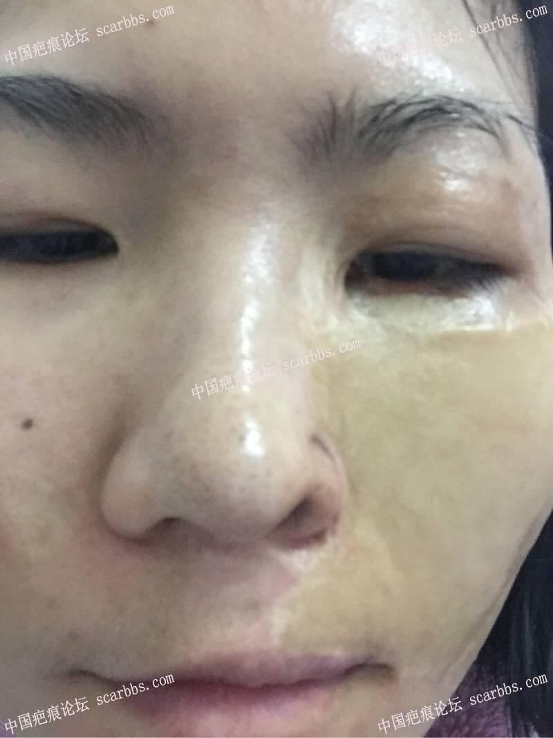 30年了,脸部烫伤,脸部做的值皮,疤痕针脚很明显,鼻翼有缺损26-疤痕体质图片_疤痕疙瘩图片-中国疤痕论坛